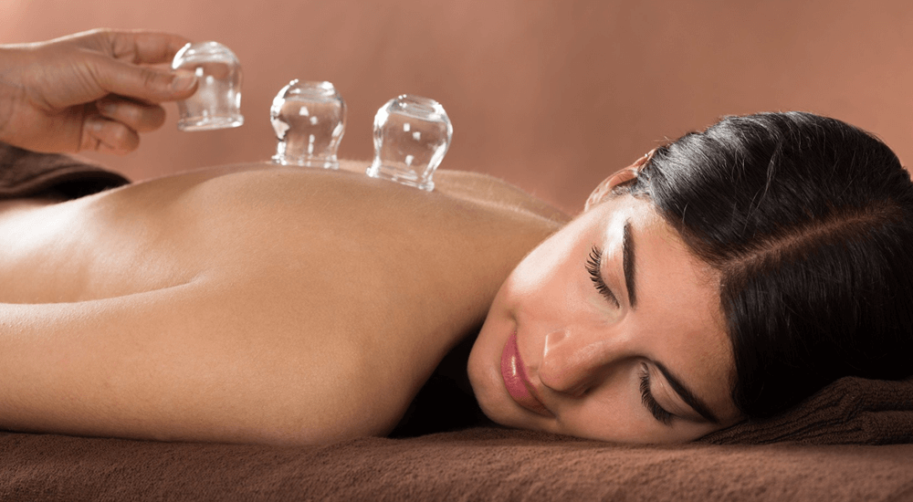 Dry Cupping Therapy In Solihull & Birmingham Area
